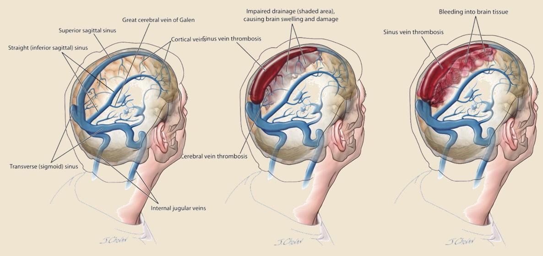 4.00-TROMBÓZA ŽIL A SPLAVŮ | Diagnostický a terapeutický manuál ...